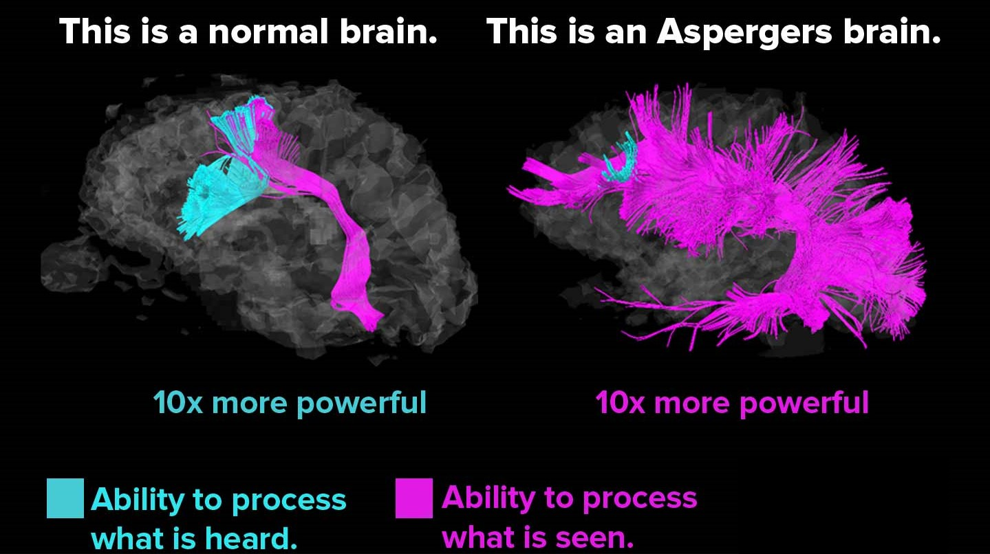 Study Confirms Gene Linked To Aspergers >> I M Programmer Do I Have Asperger S Syndrome Work N Me